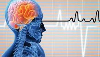 ۳ علت اصلی سکته مغزی اعلام شد