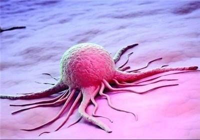 دستاورد بی سابقه محققان ایرانی در تشخیص سرطان مثانه ۱۰ سال قبل از بروز در افراد سالم بدون علامت