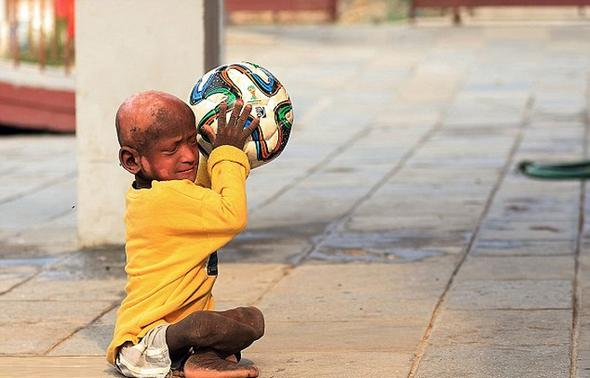 تصاویر : کودکی که پس از تولد سنگ شد