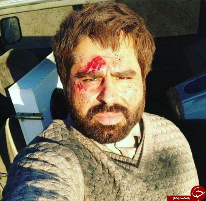 زخمی شدن امیر نوری در فلوجه عراق/عکس