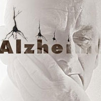 نشانه های مرحله به مرحله ابتلا به آلزایمر
