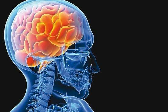 سکته مغزی ممکن است تنها علامت ابتلابه کووید ۱۹ باشد