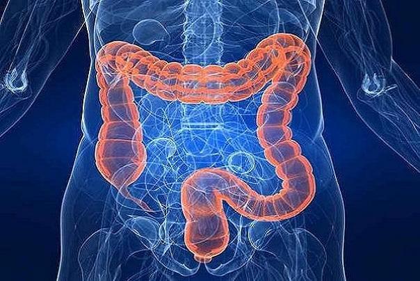 التهابات روده در کمین ۳۰ سالهها