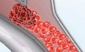 آمبولی شریانی در پاها شایع تر است/ زنان بیشتر مراقب باشند