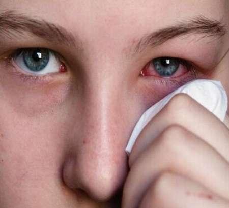 آیا اشک بیماران کرونایی باعث گسترش بیماری می شود؟