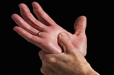 ارتباط یک نوع میکروب با بیماری لثه و آرتروز روماتوئید