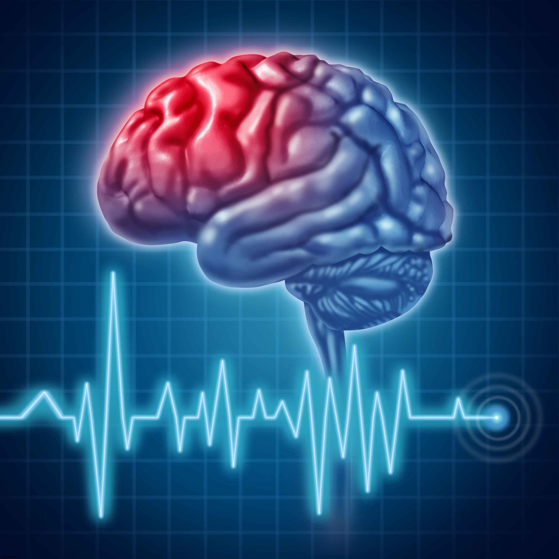 ارتباط کرونا با سکته مغزی