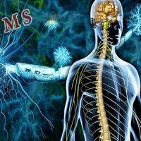 """رژیم غذایی، هدف مهمِ پزشکان برای کنترل علائم """"ام اس"""""""